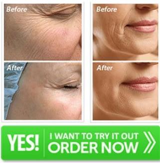 Cirene Moisturizing Cream