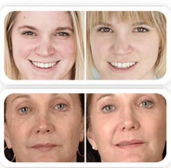 Lavelle Derma Skin cream